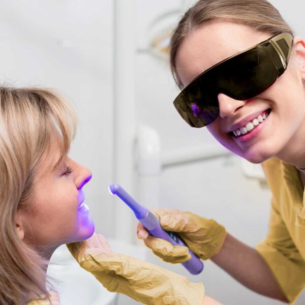 Як обрати відбілювання зубів, яке не нашкодить