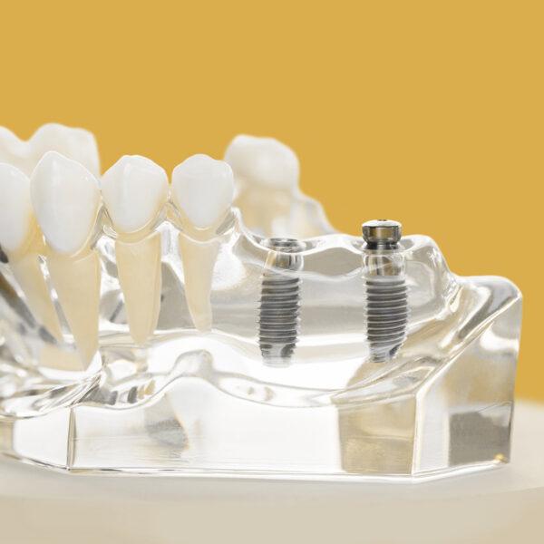 Імплантація зубів: відповіді на найважливіші питання