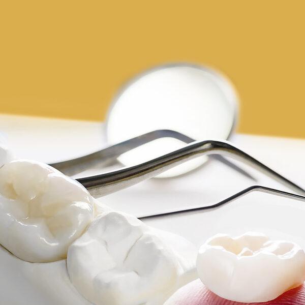Відреставрували зуб, а вам не подобається